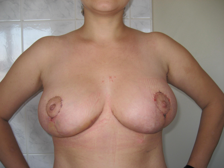 seks-posle-mammoplastiki