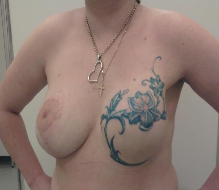 После редукционной маммопластики справа, реконструкции и татуажа слева