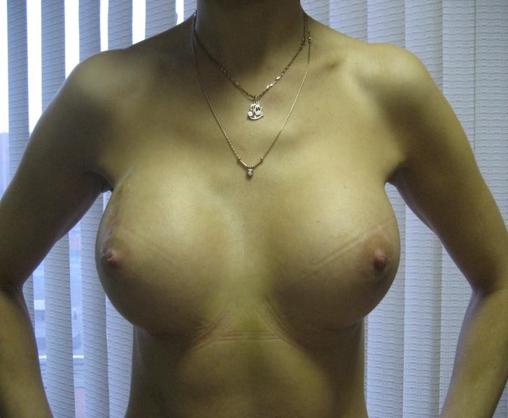 Увеличить грудь в оренбурге