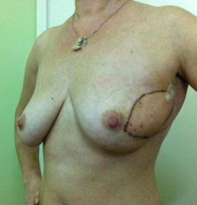 Пациентка И., с диагнозом рак левой молочной железы T2N1M0,частичный регресс на фоне неоадъювантной полихимиотерапии по схеме FAC и реконструктивно-пластической операции