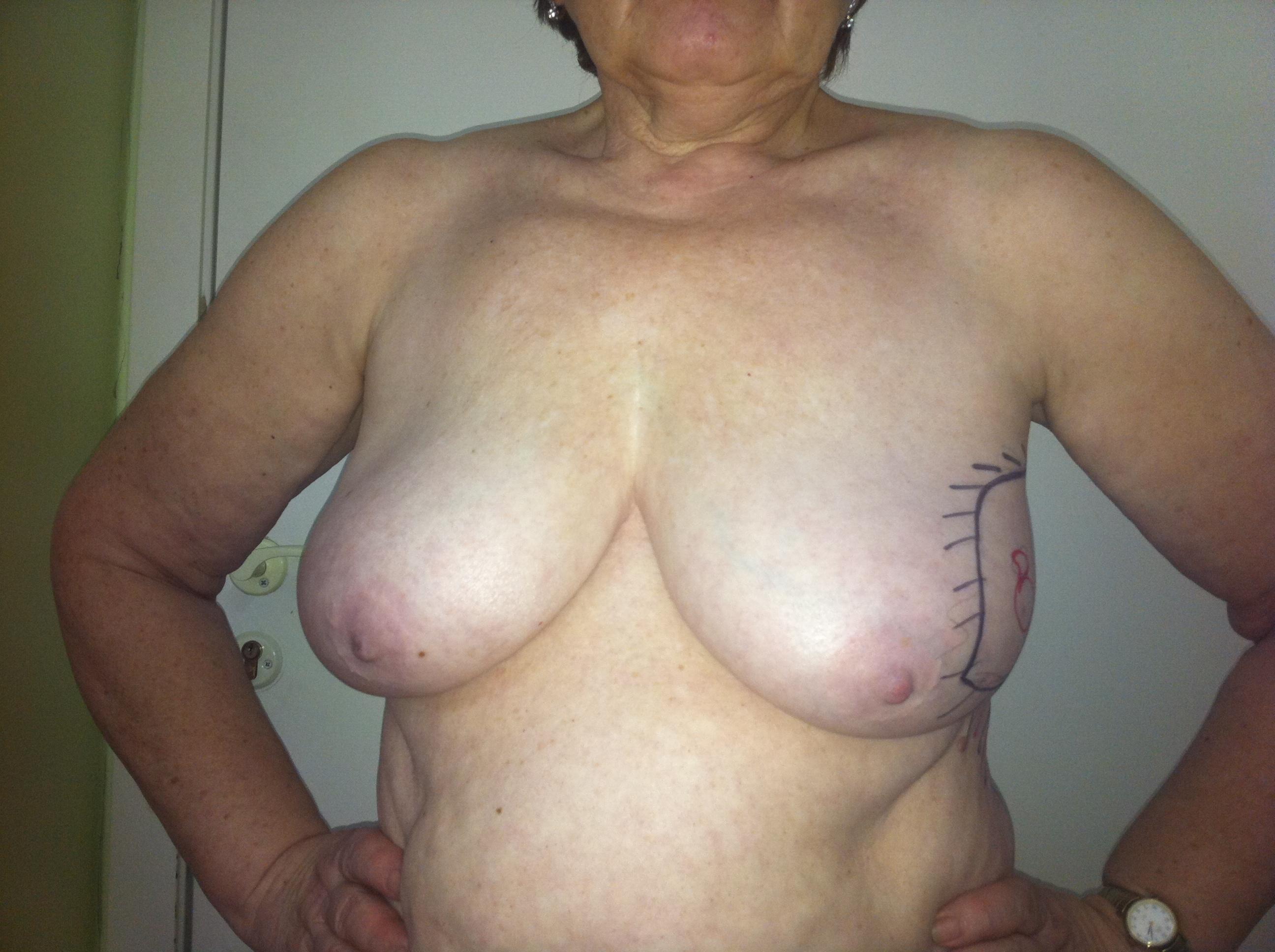 Сиськи больная раком, Рак молочной железы: что такое, симптомы на ранней 2 фотография